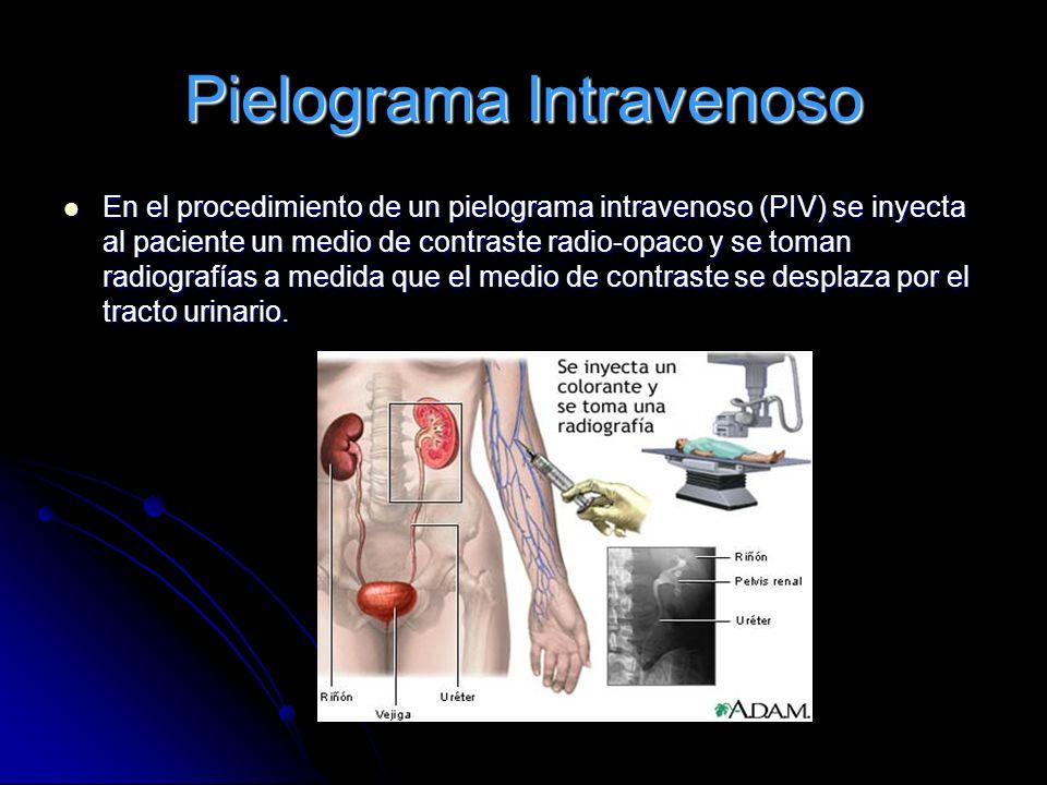 Pielograma Intravenoso En el procedimiento de un pielograma intravenoso (PIV) se inyecta al paciente un medio de contraste radio-opaco y se toman radi