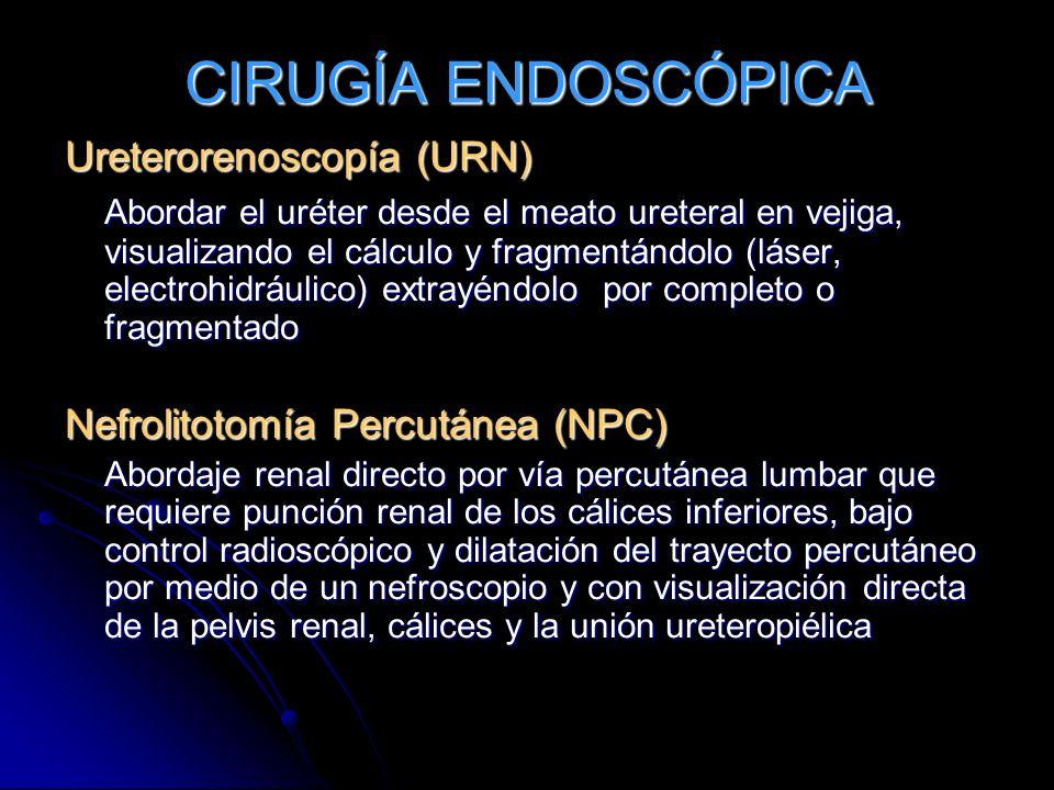 CIRUGÍA ENDOSCÓPICA Ureterorenoscopía (URN) Abordar el uréter desde el meato ureteral en vejiga, visualizando el cálculo y fragmentándolo (láser, elec