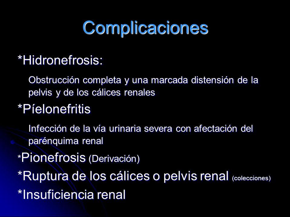 Complicaciones *Hidronefrosis: Obstrucción completa y una marcada distensión de la pelvis y de los cálices renales *Píelonefritis Infección de la vía
