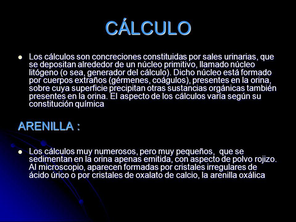 CÁLCULO Los cálculos son concreciones constituidas por sales urinarias, que se depositan alrededor de un núcleo primitivo, llamado núcleo litógeno (o