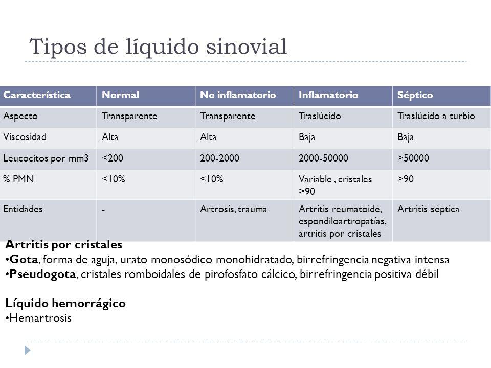 Tipos de líquido sinovial CaracterísticaNormalNo inflamatorioInflamatorioSéptico AspectoTransparente TraslúcidoTraslúcido a turbio ViscosidadAlta Baja
