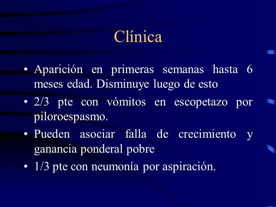 Etiología Desconocida Incompetencia de esfinter esofágico inferior Hernia hiatal. Vaciamiento gástrico lento. Lento aclaramiento de ácido en esófago.