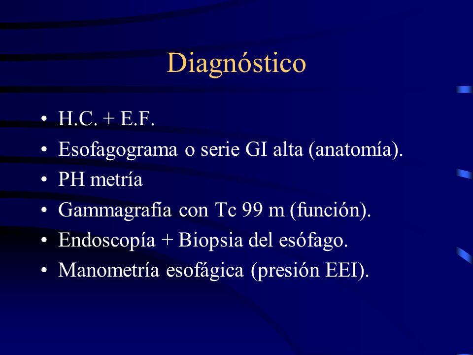 Vómito: Clínica Esofagitis, hematemesis, sangre oculta en heces, anemia ferropénica, disfagia, pirosis, irritabilidad. Síndrome de Sandifer (protecció