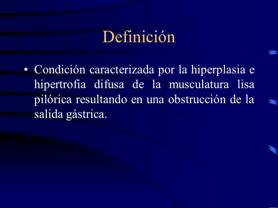 Estenosis Pilórica Hipertrófica Congénita Definición. Generalidades. Etiología. Clínica. Diagnóstico. Tratamiento.