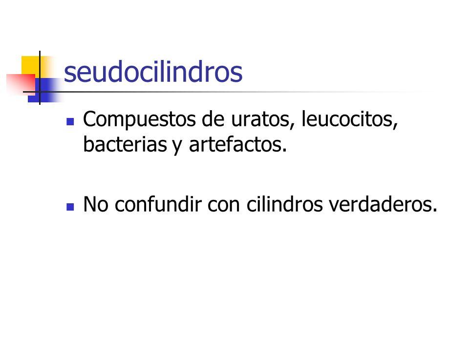 seudocilindros Compuestos de uratos, leucocitos, bacterias y artefactos. No confundir con cilindros verdaderos.