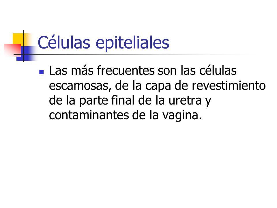 Células epiteliales Las más frecuentes son las células escamosas, de la capa de revestimiento de la parte final de la uretra y contaminantes de la vag
