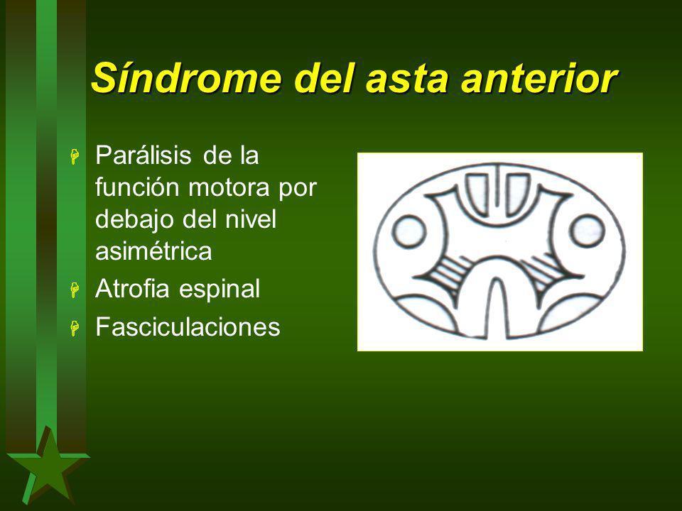 Síndrome del asta anterior H Parálisis de la función motora por debajo del nivel asimétrica H Atrofia espinal H Fasciculaciones