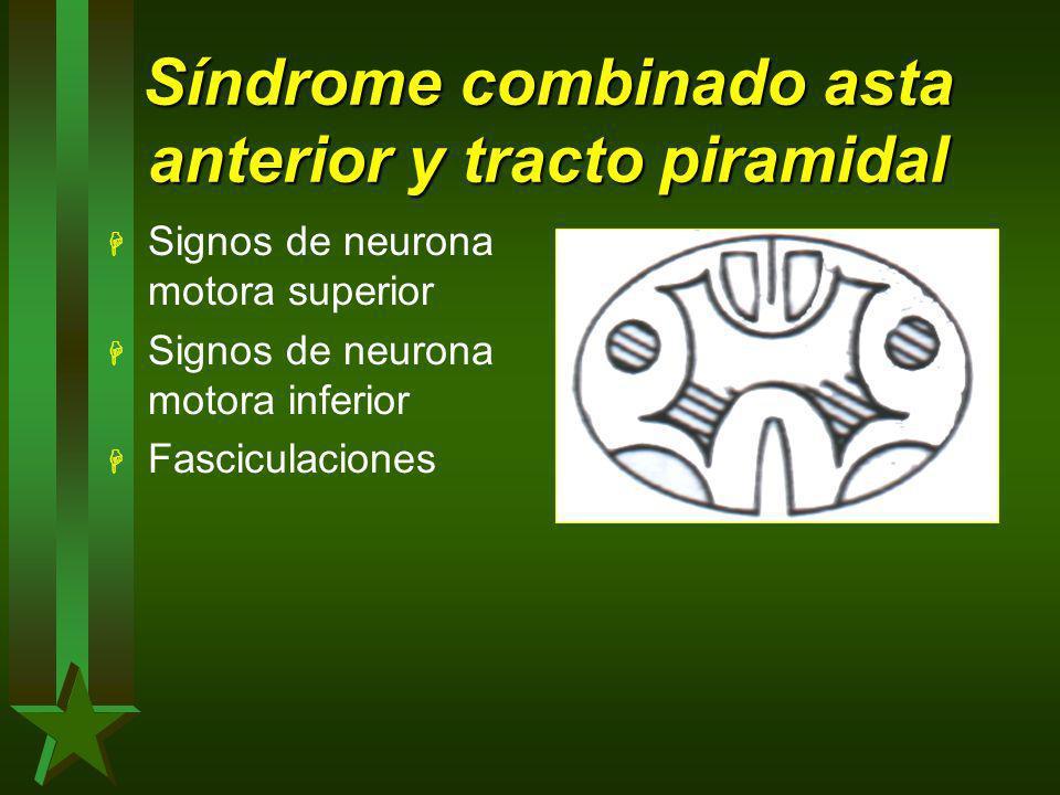 Síndrome combinado asta anterior y tracto piramidal H Signos de neurona motora superior H Signos de neurona motora inferior H Fasciculaciones