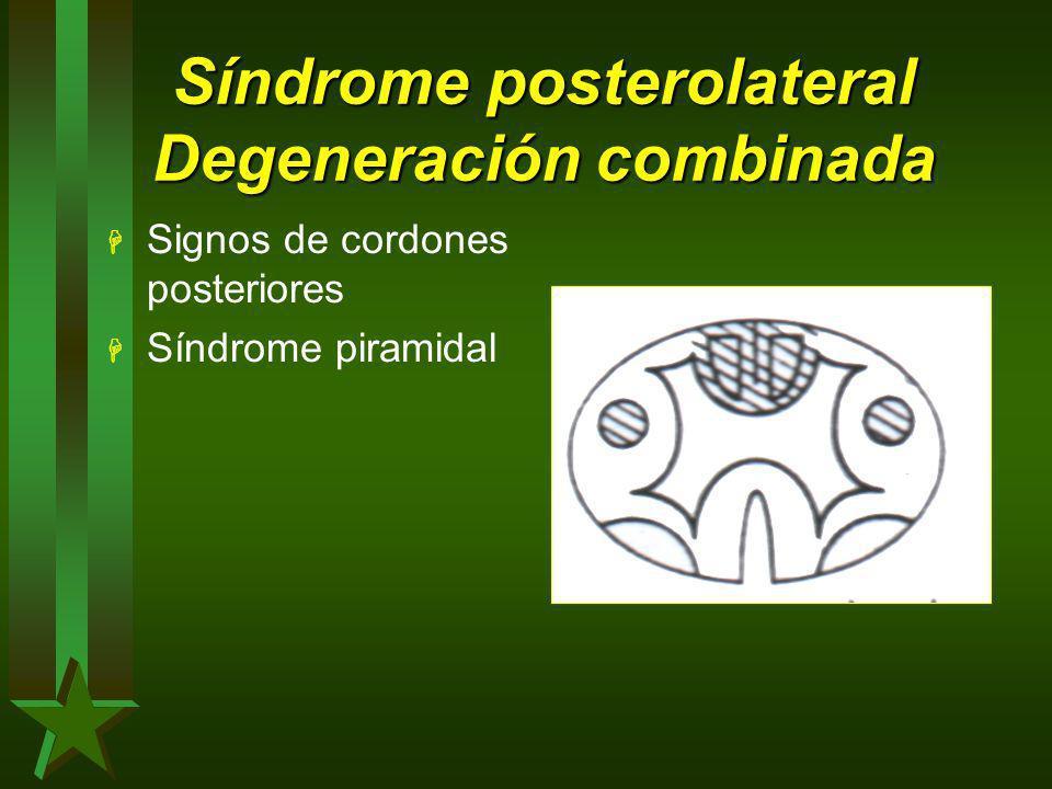 Síndrome posterolateral Degeneración combinada H Signos de cordones posteriores H Síndrome piramidal