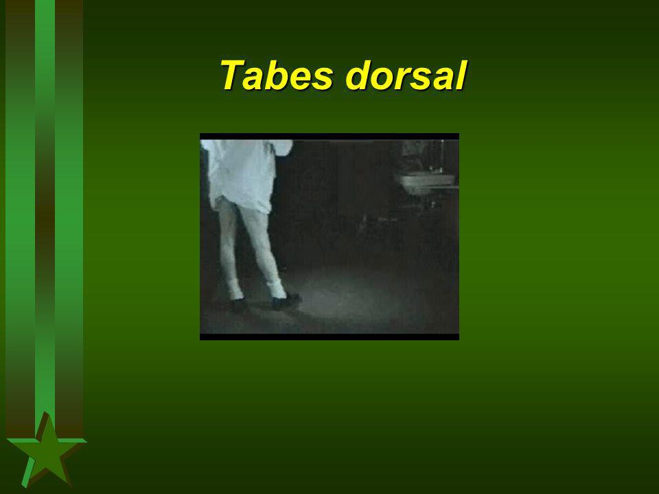 Tabes dorsal