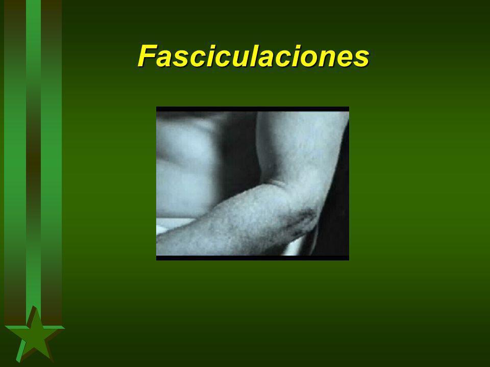 Fasciculaciones