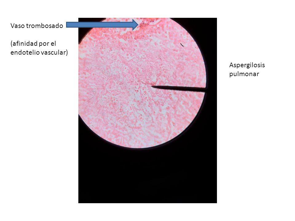 Aspergilosis pulmonar Vaso trombosado (afinidad por el endotelio vascular)