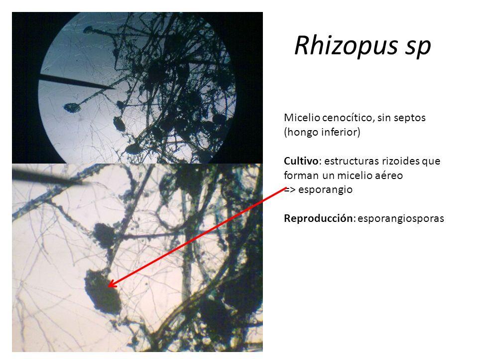 Rhizopus sp Micelio cenocítico, sin septos (hongo inferior) Cultivo: estructuras rizoides que forman un micelio aéreo => esporangio Reproducción: espo