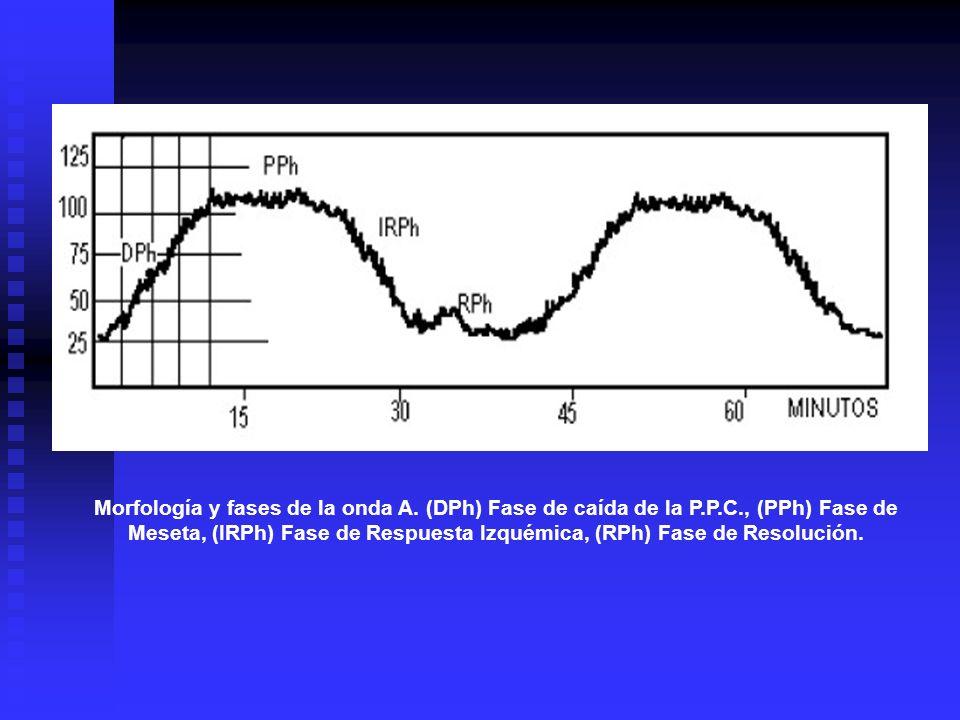 Morfología y fases de la onda A. (DPh) Fase de caída de la P.P.C., (PPh) Fase de Meseta, (IRPh) Fase de Respuesta Izquémica, (RPh) Fase de Resolución.