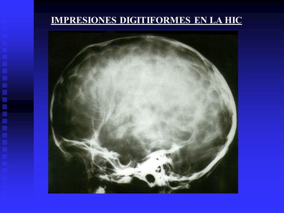 IMPRESIONES DIGITIFORMES EN LA HIC