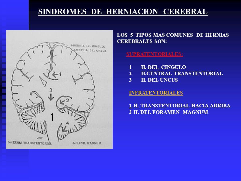 SINDROMES DE HERNIACION CEREBRAL LOS 5 TIPOS MAS COMUNES DE HERNIAS CEREBRALES SON: SUPRATENTORIALES: 1H. DEL CINGULO 2H.CENTRAL TRANSTENTORIAL 3H. DE