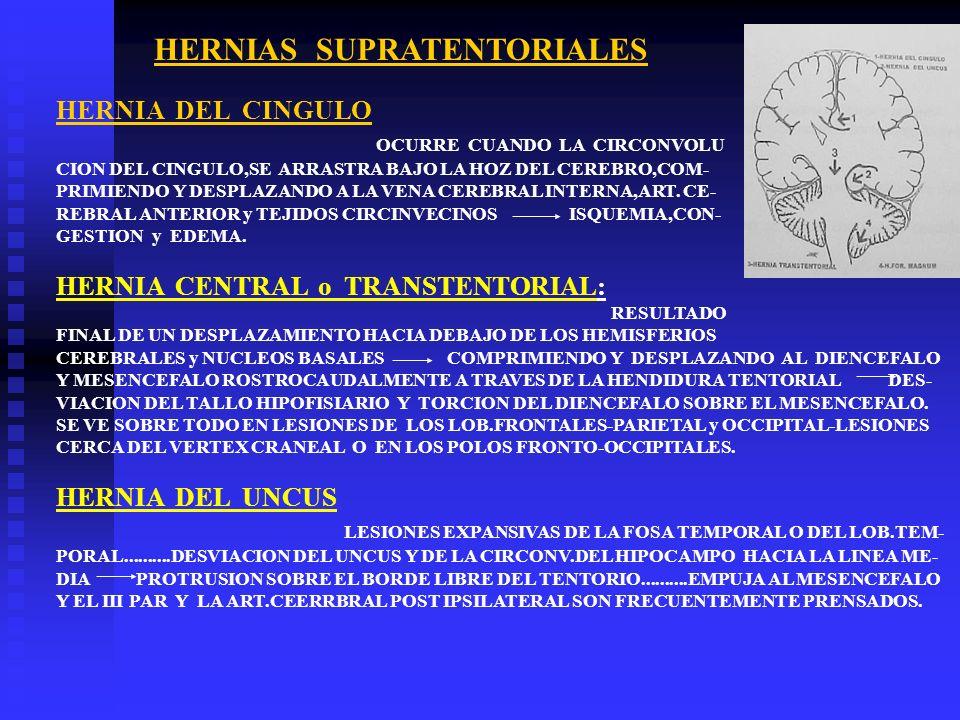 HERNIA DEL CINGULO OCURRE CUANDO LA CIRCONVOLU CION DEL CINGULO,SE ARRASTRA BAJO LA HOZ DEL CEREBRO,COM- PRIMIENDO Y DESPLAZANDO A LA VENA CEREBRAL IN