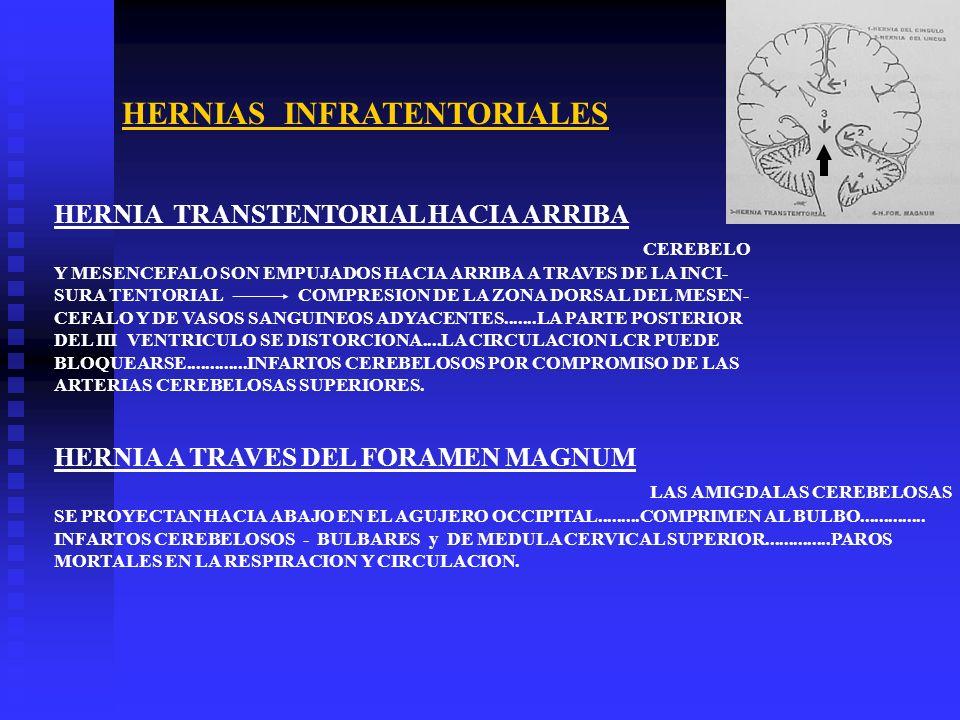 HERNIAS INFRATENTORIALES HERNIA TRANSTENTORIAL HACIA ARRIBA CEREBELO Y MESENCEFALO SON EMPUJADOS HACIA ARRIBA A TRAVES DE LA INCI- SURA TENTORIAL COMP