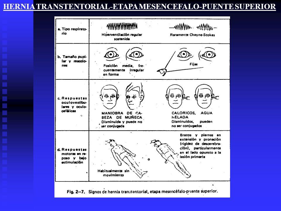 HERNIA TRANSTENTORIAL-ETAPA MESENCEFALO-PUENTE SUPERIOR