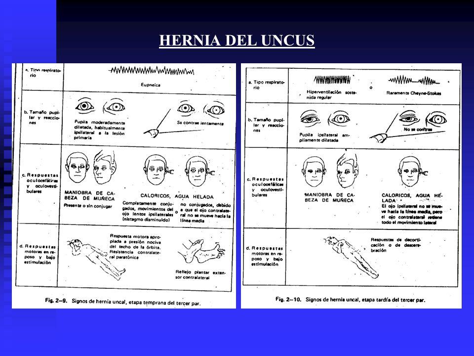 HERNIA DEL UNCUS