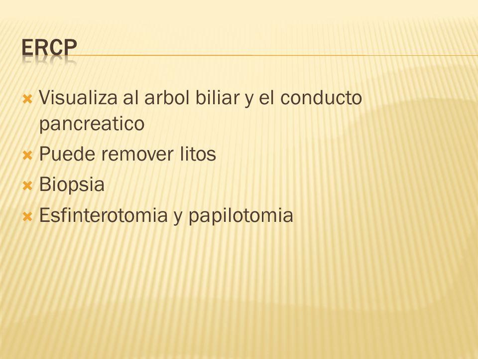 Visualiza al arbol biliar y el conducto pancreatico Puede remover litos Biopsia Esfinterotomia y papilotomia