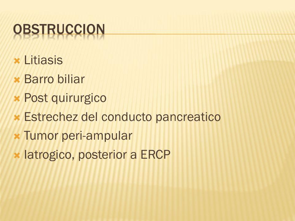 Litiasis Barro biliar Post quirurgico Estrechez del conducto pancreatico Tumor peri-ampular Iatrogico, posterior a ERCP