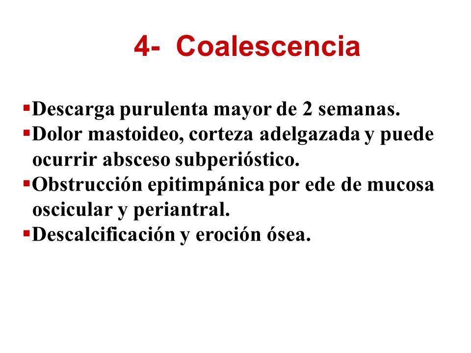 4- Coalescencia Descarga purulenta mayor de 2 semanas. Dolor mastoideo, corteza adelgazada y puede ocurrir absceso subperióstico. Obstrucción epitimpá