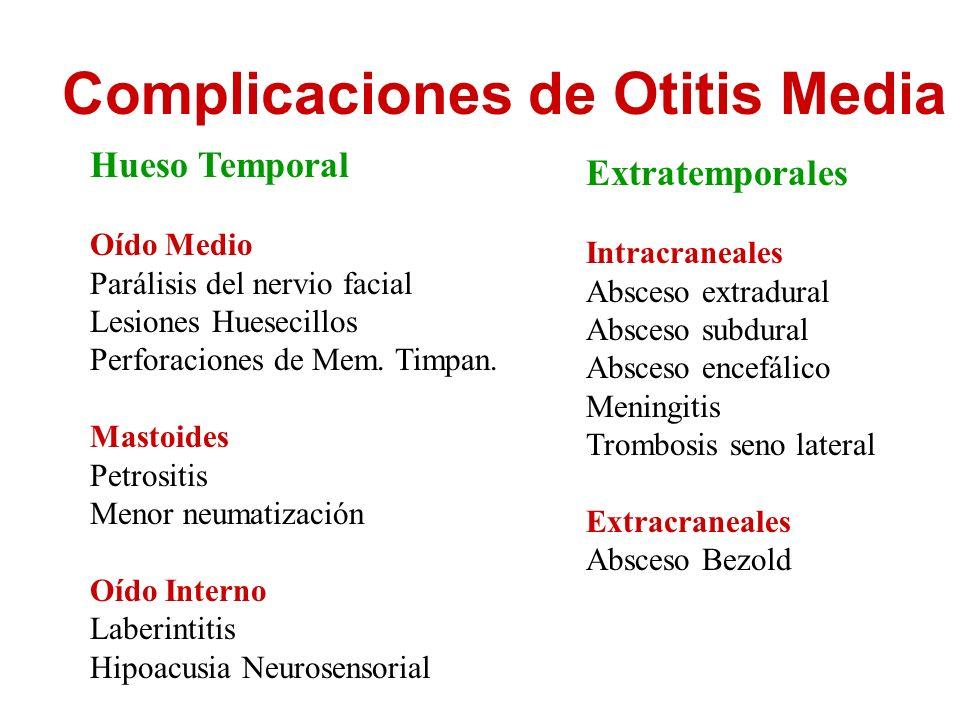 Complicaciones de Otitis Media Hueso Temporal Oído Medio Parálisis del nervio facial Lesiones Huesecillos Perforaciones de Mem. Timpan. Mastoides Petr