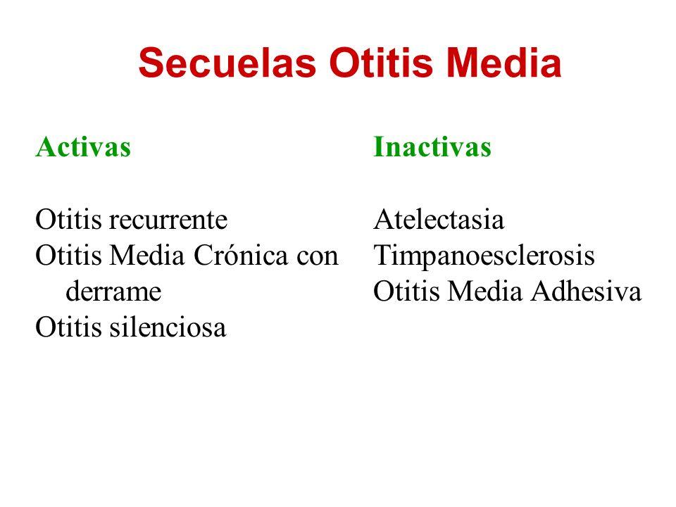 Secuelas Otitis Media Activas Otitis recurrente Otitis Media Crónica con derrame Otitis silenciosa Inactivas Atelectasia Timpanoesclerosis Otitis Medi