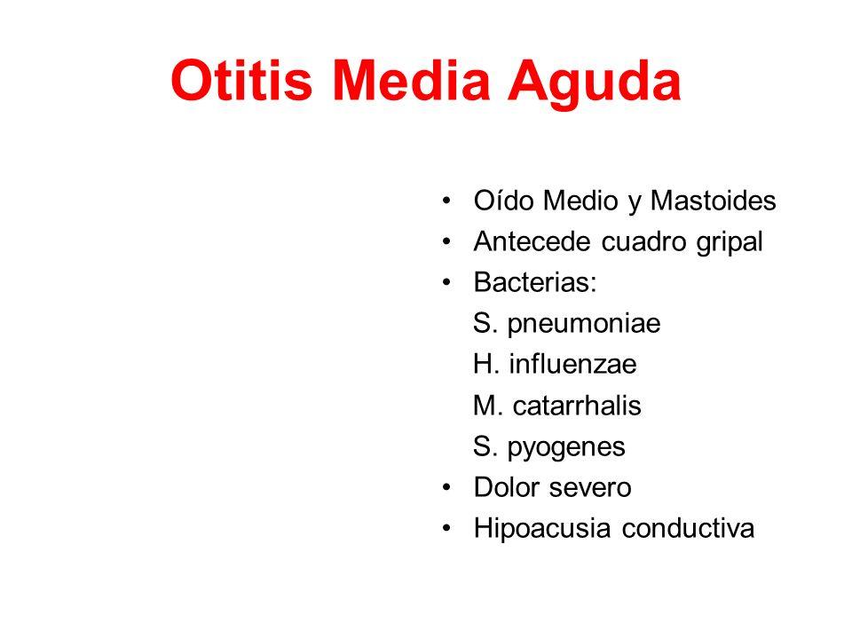 Otitis Media Aguda Oído Medio y Mastoides Antecede cuadro gripal Bacterias: S. pneumoniae H. influenzae M. catarrhalis S. pyogenes Dolor severo Hipoac