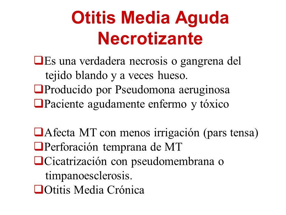 Otitis Media Aguda Necrotizante Es una verdadera necrosis o gangrena del tejido blando y a veces hueso. Producido por Pseudomona aeruginosa Paciente a