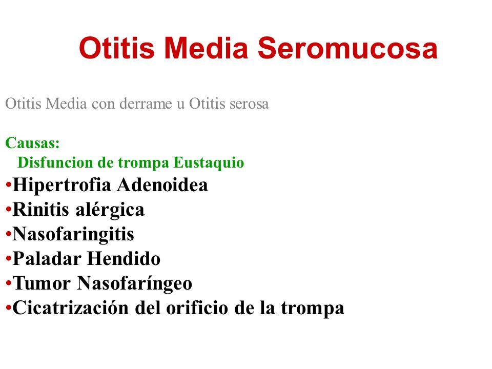 Otitis Media Seromucosa Otitis Media con derrame u Otitis serosa Causas: Disfuncion de trompa Eustaquio Hipertrofia Adenoidea Rinitis alérgica Nasofar