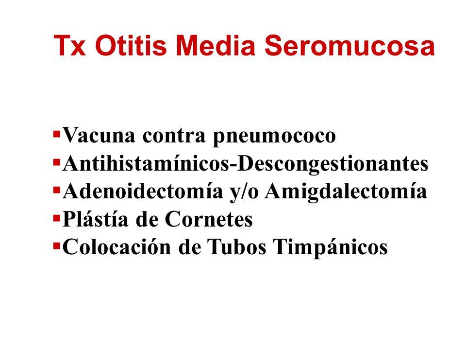 Tx Otitis Media Seromucosa Vacuna contra pneumococo Antihistamínicos-Descongestionantes Adenoidectomía y/o Amigdalectomía Plástía de Cornetes Colocaci