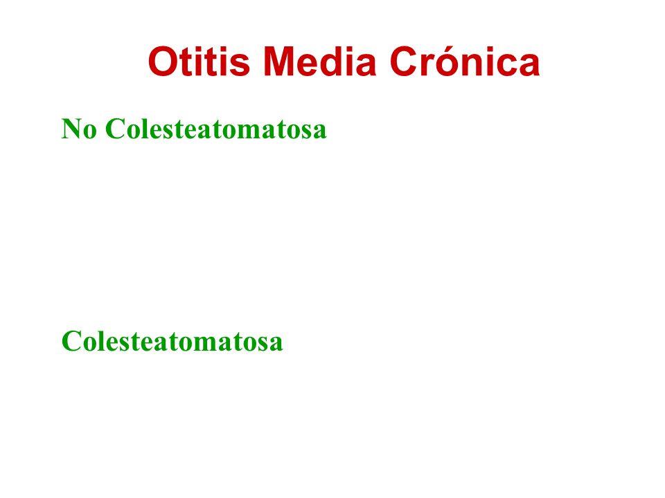Otitis Media Crónica No Colesteatomatosa Colesteatomatosa