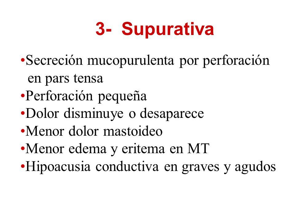 3- Supurativa Secreción mucopurulenta por perforación en pars tensa Perforación pequeña Dolor disminuye o desaparece Menor dolor mastoideo Menor edema