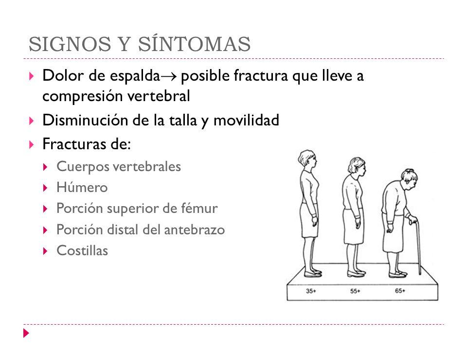 SIGNOS Y SÍNTOMAS Dolor de espalda posible fractura que lleve a compresión vertebral Disminución de la talla y movilidad Fracturas de: Cuerpos vertebr