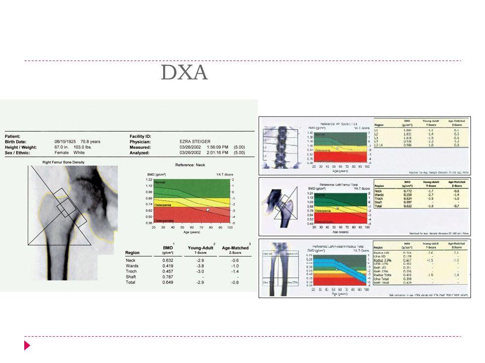 Técnicas para valorar la DMO Densitometría periférica.