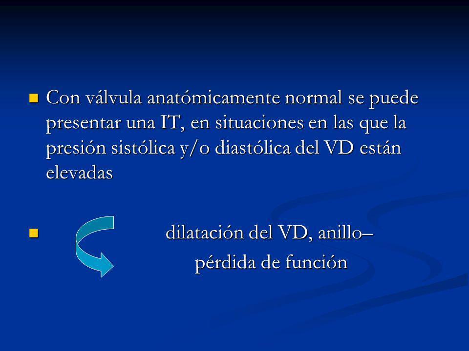 Con válvula anatómicamente normal se puede presentar una IT, en situaciones en las que la presión sistólica y/o diastólica del VD están elevadas Con válvula anatómicamente normal se puede presentar una IT, en situaciones en las que la presión sistólica y/o diastólica del VD están elevadas dilatación del VD, anillo– dilatación del VD, anillo– pérdida de función pérdida de función
