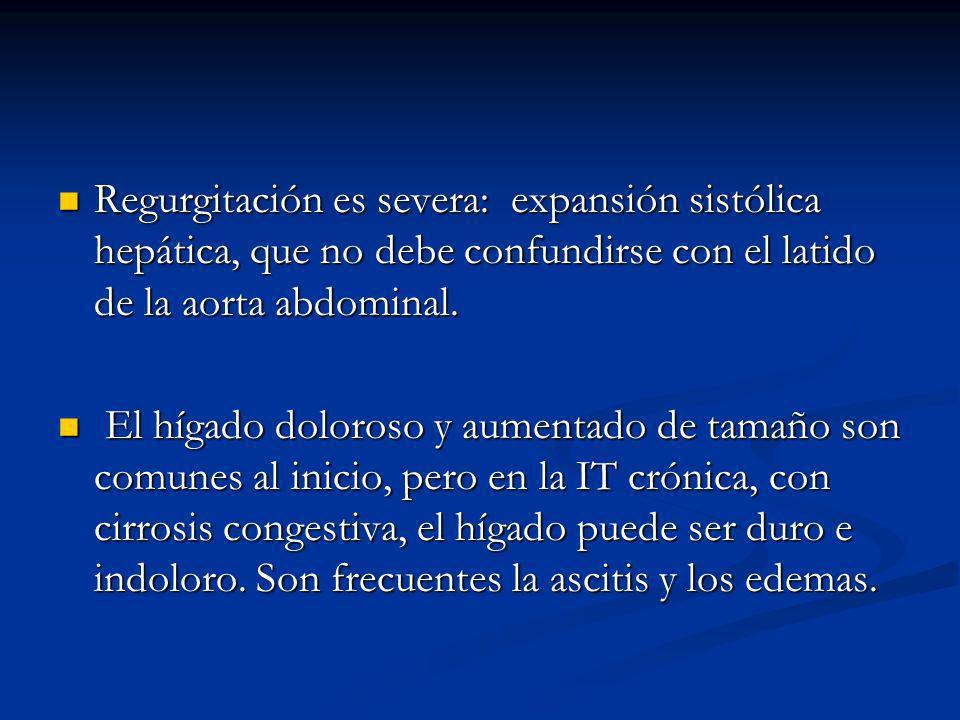 Regurgitación es severa: expansión sistólica hepática, que no debe confundirse con el latido de la aorta abdominal.
