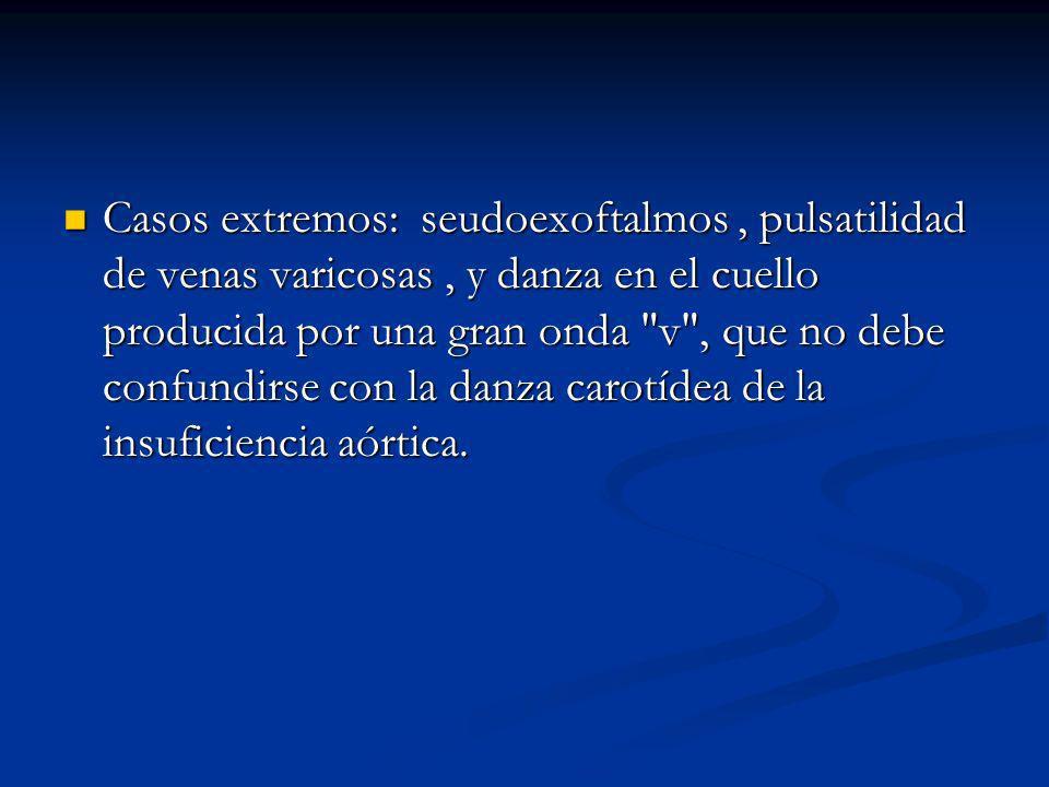 Casos extremos: seudoexoftalmos, pulsatilidad de venas varicosas, y danza en el cuello producida por una gran onda v , que no debe confundirse con la danza carotídea de la insuficiencia aórtica.