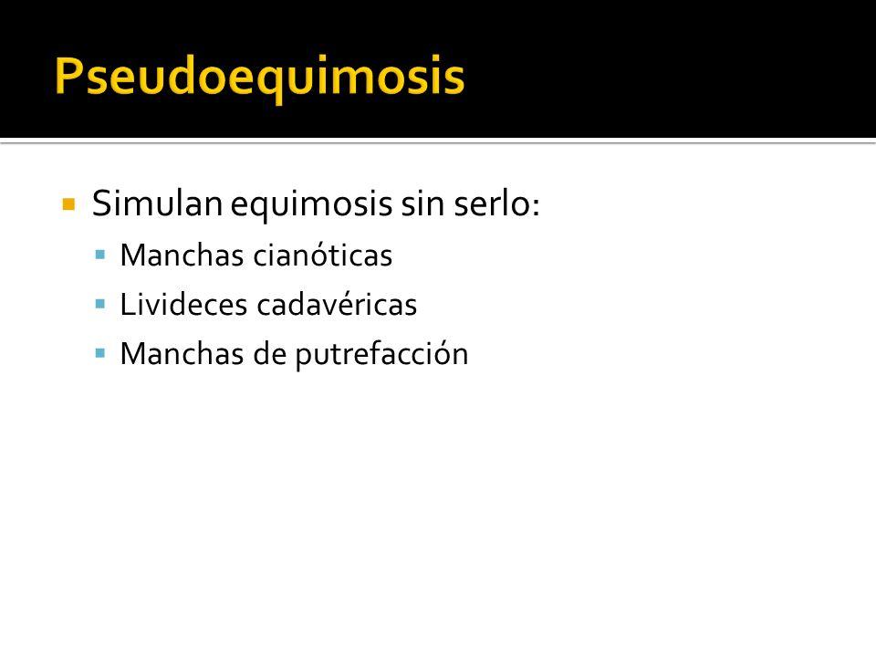 Simulan equimosis sin serlo: Manchas cianóticas Livideces cadavéricas Manchas de putrefacción