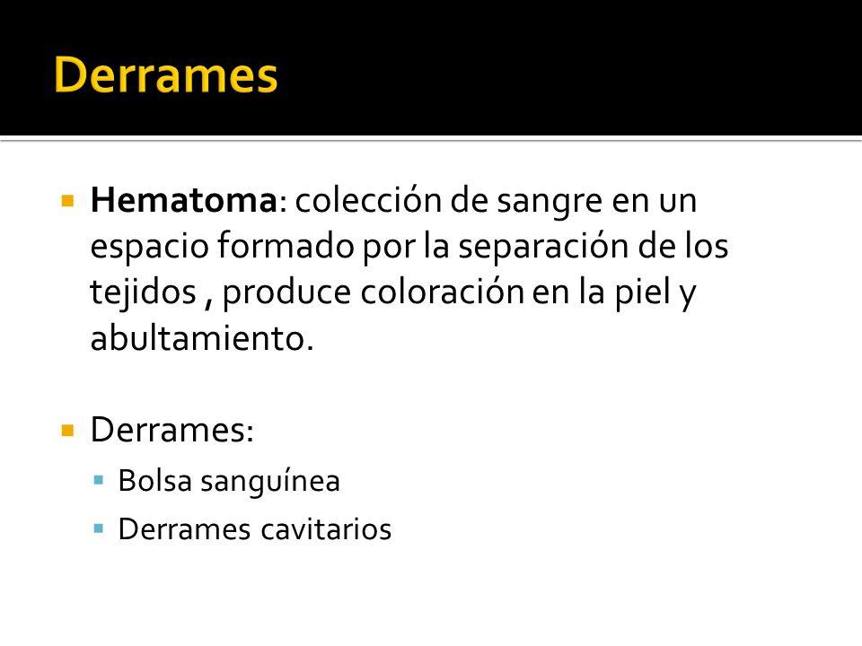 Hematoma: colección de sangre en un espacio formado por la separación de los tejidos, produce coloración en la piel y abultamiento. Derrames: Bolsa sa