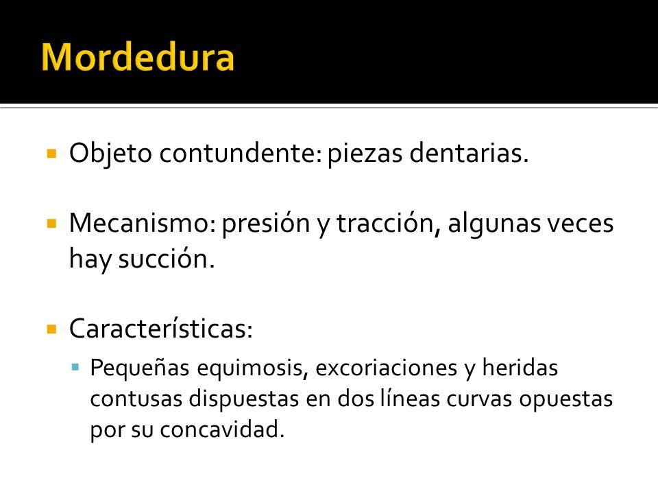 Objeto contundente: piezas dentarias. Mecanismo: presión y tracción, algunas veces hay succión. Características: Pequeñas equimosis, excoriaciones y h