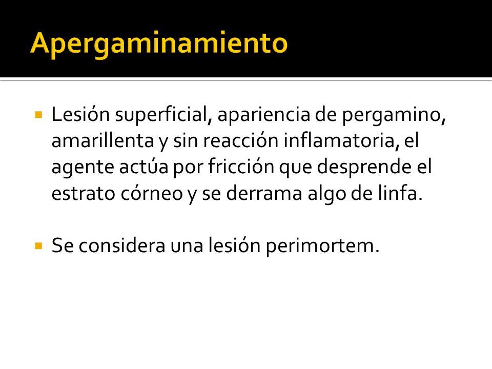 Hemorragia subconjuntival No cambian de color, solo se atenúa su color.