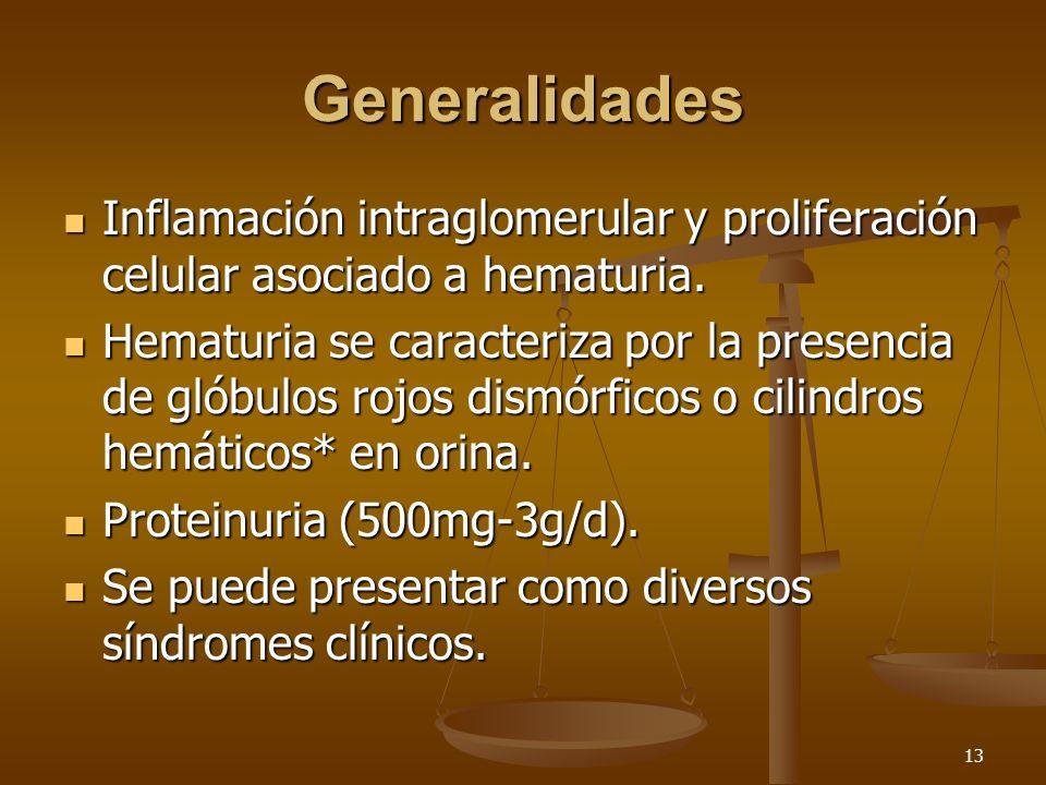 13 Generalidades Inflamación intraglomerular y proliferación celular asociado a hematuria. Inflamación intraglomerular y proliferación celular asociad