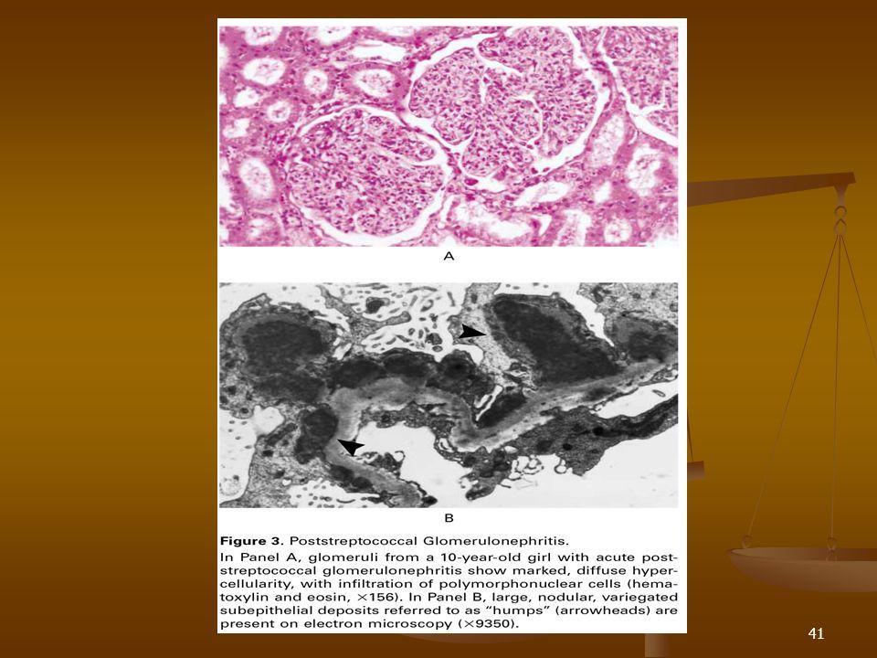 42 Glomerulonefritis postestreptocóccica Reversible en > de pacientes Reversible en > de pacientes Hematuria y edema 7- 12 semanas luego del proceso infeccioso Hematuria y edema 7- 12 semanas luego del proceso infeccioso Resolución rápida Resolución rápida C3 en etapas tempranas y retorna a nivel basal luego 8 semanas C3 en etapas tempranas y retorna a nivel basal luego 8 semanas C3 persistente debe alertar la posibilidad de LES o glomerulonefritis membranoproliferativa C3 persistente debe alertar la posibilidad de LES o glomerulonefritis membranoproliferativa