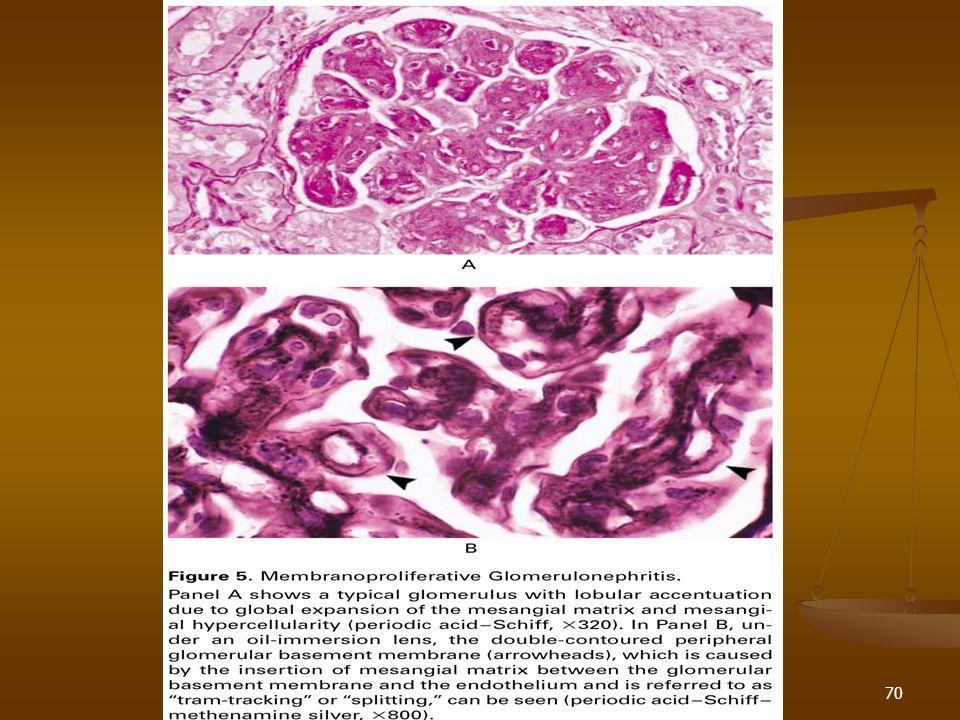 71 Glomerulonefritis Crónica Deterioro progresivo de la función renal en pacientes con inflamación glomerular, hematuria e hipertensión Deterioro progresivo de la función renal en pacientes con inflamación glomerular, hematuria e hipertensión Nefritis lúpica Nefritis lúpica 35% van a progresar a falla renal crónica 35% van a progresar a falla renal crónica