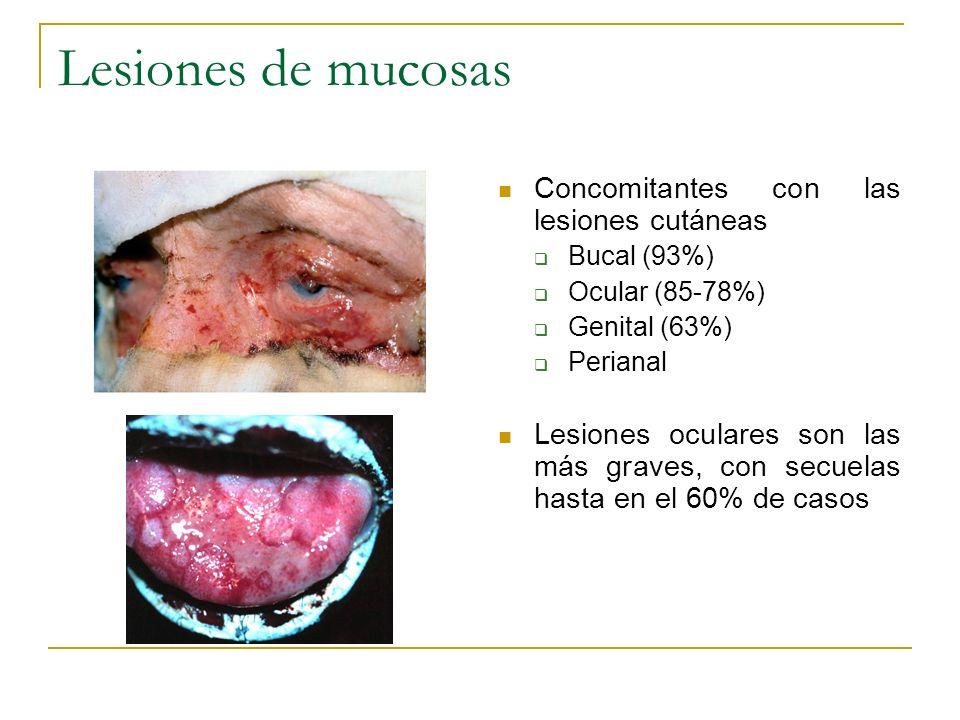 Lesiones de mucosas Concomitantes con las lesiones cutáneas Bucal (93%) Ocular (85-78%) Genital (63%) Perianal Lesiones oculares son las más graves, c