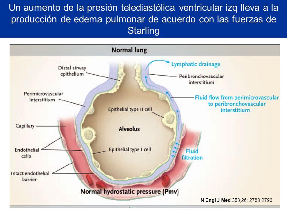 Un aumento de la presión telediastólica ventricular izq lleva a la producción de edema pulmonar de acuerdo con las fuerzas de Starling N Engl J Med 35
