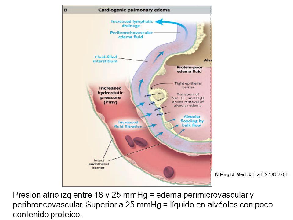 Presión atrio izq entre 18 y 25 mmHg = edema perimicrovascular y peribroncovascular. Superior a 25 mmHg = líquido en alvéolos con poco contenido prote